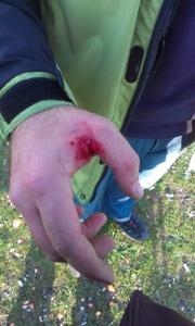 zranenie ZVI Kevin